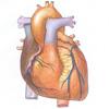 Заболевания сердца - болезни образа жизни